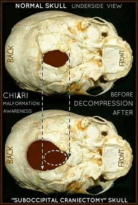 what is chiari malformation